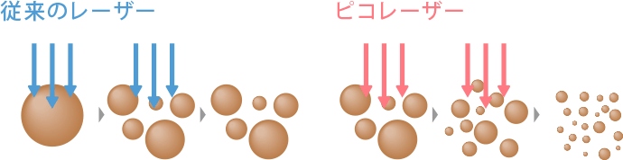 従来のレーザーとピコレーザーの比較イメージ